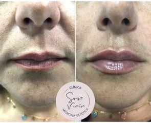 Aumento de labios - Dra. Verónica Sosa Viaín