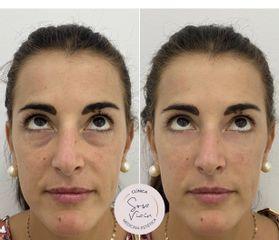 Eliminación de ojeras - Dra. Verónica Sosa Viaín
