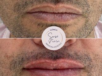 Aumento labios-713431