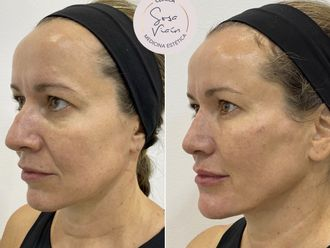 Rejuvenecimiento facial-713432