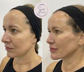 Rejuvenecimiento facial - Dra. Verónica Sosa Viaín