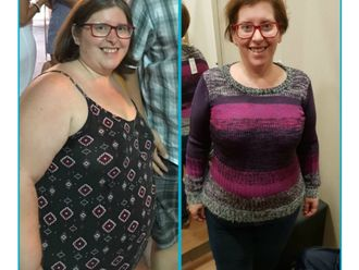 POSE Reducción de estómago-647954