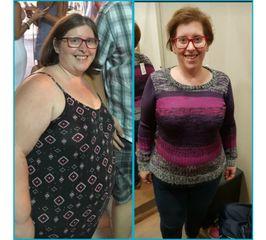Antes y después reducción de estomago