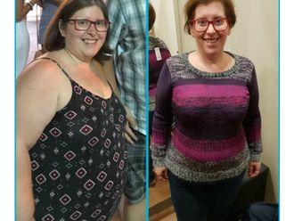POSE Reducción de estómago - 647954