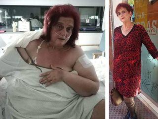 Antes y después (10 meses)