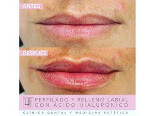 Aumento de labios - Clínica 4Ces