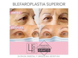 Blefaroplastia-702102