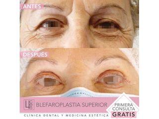Blefaroplastia - Clínica 4Ces