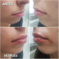 Aumento de labios - Dra. Sandra Cade