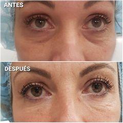 Eliminación de ojeras - Dra. Sandra Cade