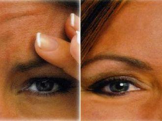 Rejuvenecimiento facial-419387