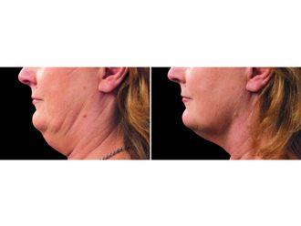 Liposucción - 629522