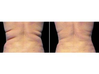 Liposucción - 629528