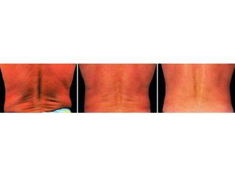 Liposucción - 629537