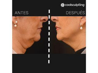Antes y después Coolsculpting