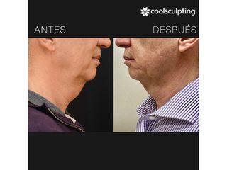 Antes y después Coolsculpting papada