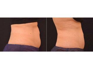 Antes y despues coolsculpting abdomen