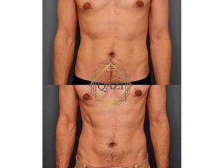 Antes y después Criolipólisis