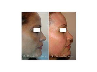 Tratamiento antiacné - 660596