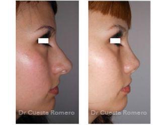 Cirugía estética-663048