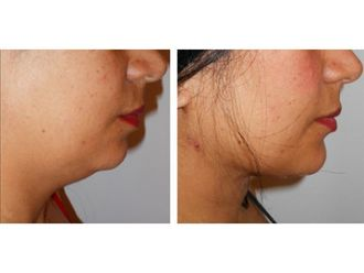 Liposucción-689184