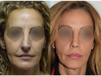 Cirugía estética-689211