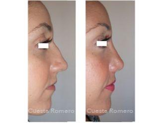 Cirugía estética-699138