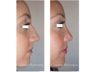 Rinoplastia - Dr. Carlos Cuesta Romero