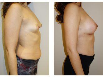 Cirugía estética-699147