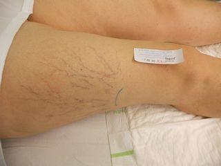 Paciente antes de tratamiento varices