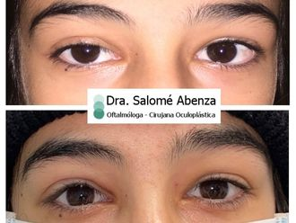 Blefaroplastia-790589