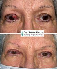 Blefaroplastia - Dra. Salomé Abenza