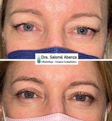 Blefaroplastia superior Dra Salomé Abenza