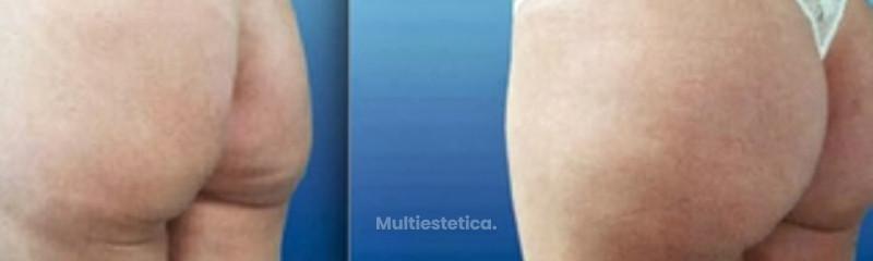 gluteoplastica-3.jpg