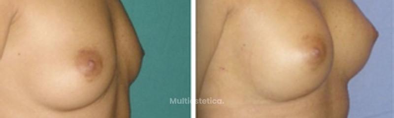 Mastoplastia antes y después