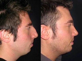 Profiloplastia antes y después
