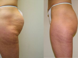 Tratamiento antigrasa - 566261