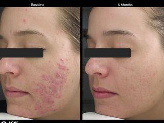 Antes y después Terapia Inducción al Colágeno para cicatrices de acné