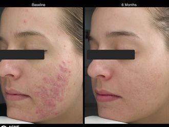 Corrección cicatrices - 572422