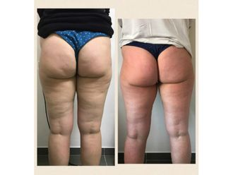 Tratamiento antigrasa - 603751