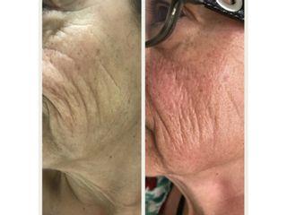 Rejuvenecimiento facial - Edna, Estética Avanzada