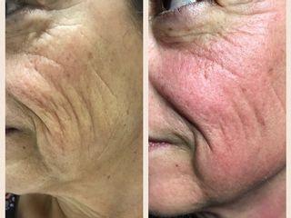 Antes y después tratamiento cuperosis