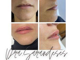 Aumento labios - 800425