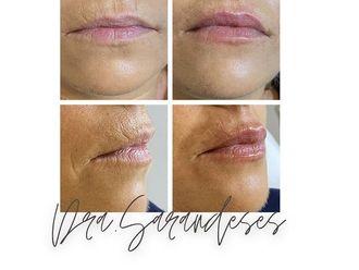 Aumento labios - 800427