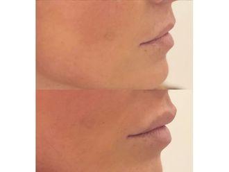 Aumento labios - 646253