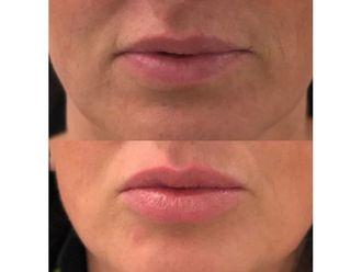 Aumento labios - 646254