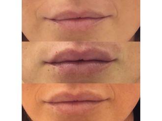 Aumento labios - 646255