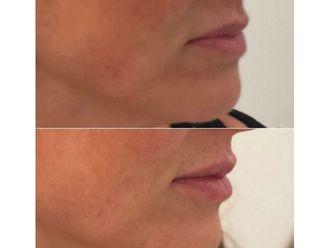Aumento labios - 646257