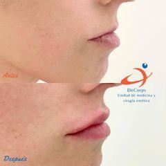 Aumento de labios - Clínica Decorps