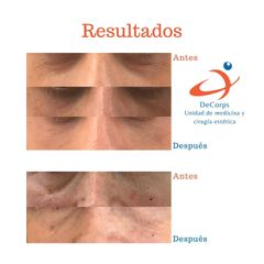 Eliminación de ojeras - Clínica Decorps